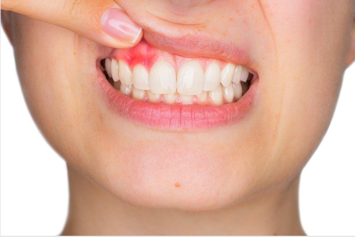 Parodontologie Zahnarzt Köln